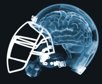 Problem Solvers: Sports Concussions